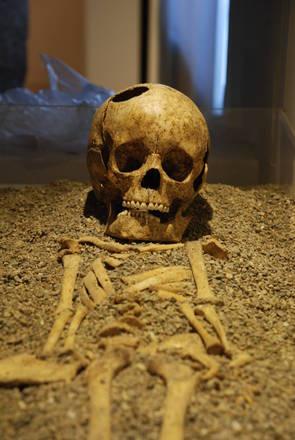 """Sapienza: con """"Il bambino di Fidene"""" chirurgia degli antichi romani in mostra al Museo di Storia della Medicina"""