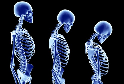 Asl Roma 4: solo Moc a pagamento o fuori Asl. Quintavalle dimentica prevenzione per osteoporosi. Donne a rischio